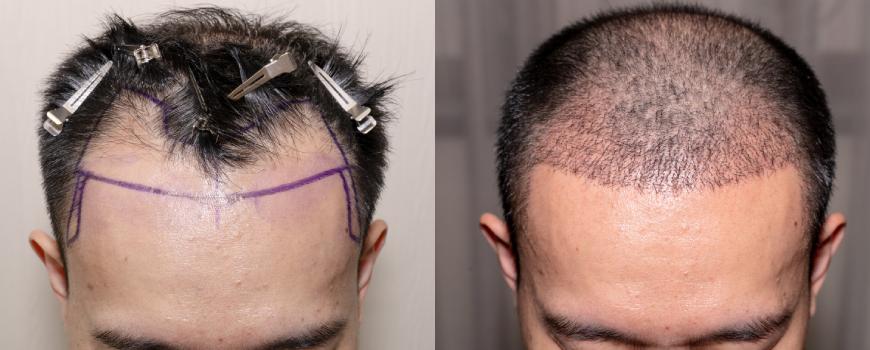 sistema di infoltimento capelli